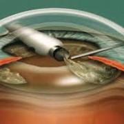 Факоэмульсификация катаракты с имплантацией ИОЛ фото