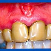 Протезирование зубов и ортопедическая стоматология фото