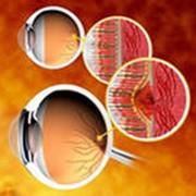 Дистрофия глазных нервов - НМУ Богомольця фото
