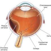 Лечение заболеваний зрительной системы фото