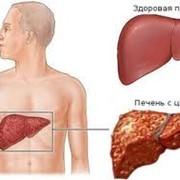 Диагностика и лечение цирроза печени фото