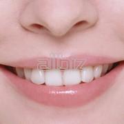 Снятие зубного камня фото